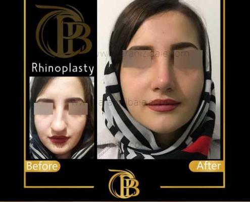 rhinoplasty iran