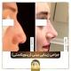nose job iran
