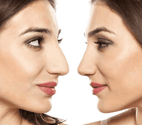 best rhinoplasty in Iran