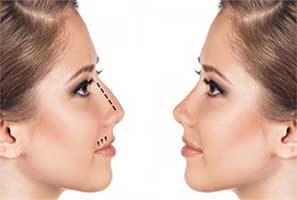 best rhinoplasty in Iran6