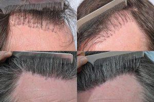 Hair Transplant111