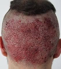 Hair Transplant4