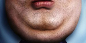 Double Chin Surgery in Iran 798