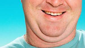 Double Chin Surgery7