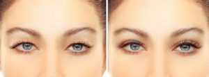 Eyelid Surgery in Iran2