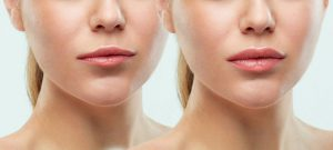 Lip Augmentation in Iran15