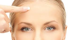 Brow Lift in Iran4