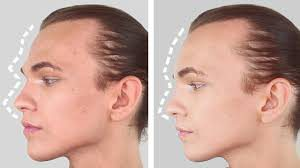 Forehead Contouring in Iran5