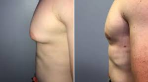 Gynecomastia Surgery in Iran1