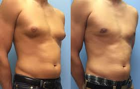 Gynecomastia Surgery in Iran55