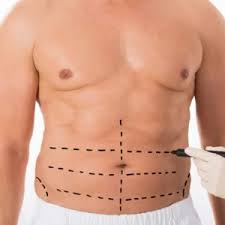 abdominal etching in Iran00