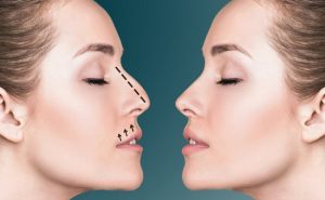 Best Rhinoplasty Turkey , Ethnic Rhinoplasty Turkey2