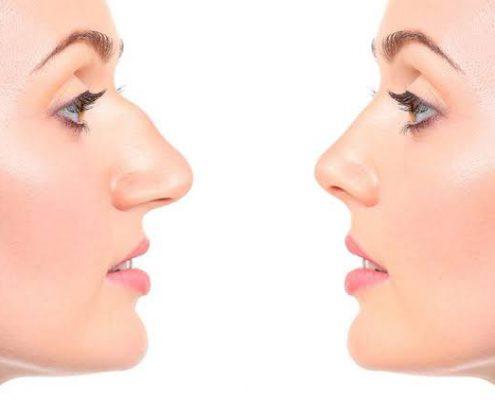Nose Job Istanbul, Nose Surgery Istanbul