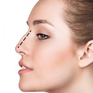 Nose Job Istanbul, Nose Surgery Istanbul1