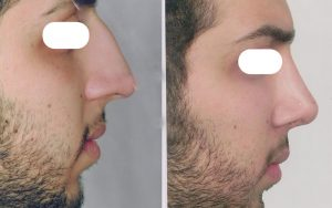 Fantasy Nose Surgery