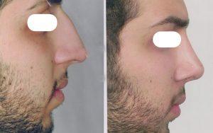 Fantasy Nose Surgery