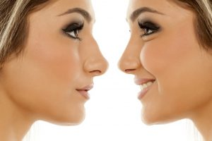 Nose Surgeon