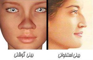مزایای جراحی بینی گوشتی