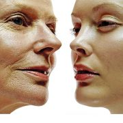 Face cosmetic surgery