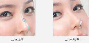 Fantasy nose