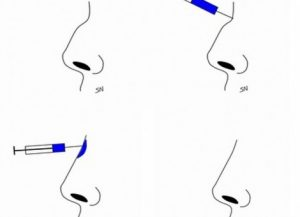 Removal of Noses Without Surgery