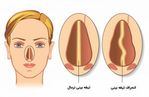 nose deviation