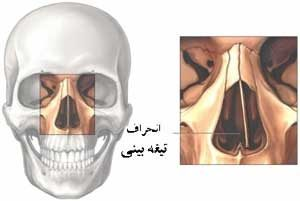 nose deviation