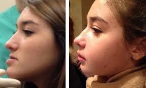 Chin prosthesis