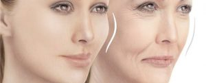 Prosthodontics