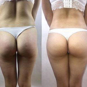 Buttock prosthesis