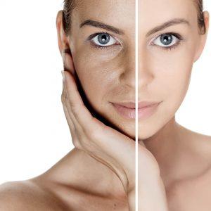 عمل لیزر پوست