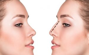 Nose Surgery in Iran