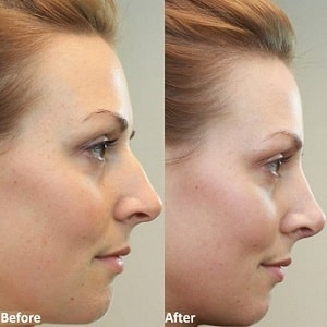 Best Nose Surgery in Iran