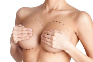 Breast prosthesis Mark Mantor