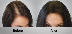 Cheap hair transplant
