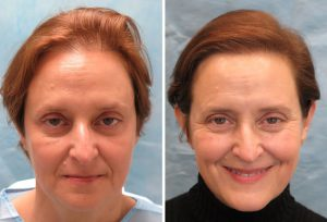 Hair transplant takes a few hours