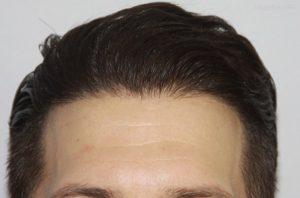 روش ع=های مختلف کاشت مو در ایران