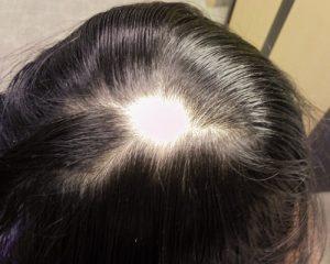 متخصص کاشت مو تیکه ای