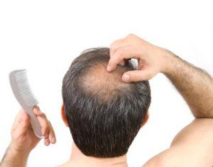 متخصص کاشت مو در تهران