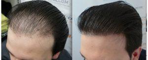 Hair Clinic Planting