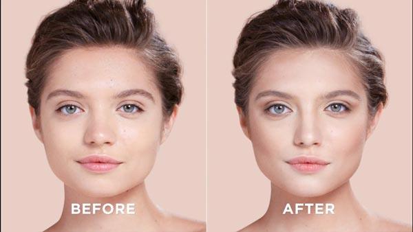 قبل و بعد عمل بینی