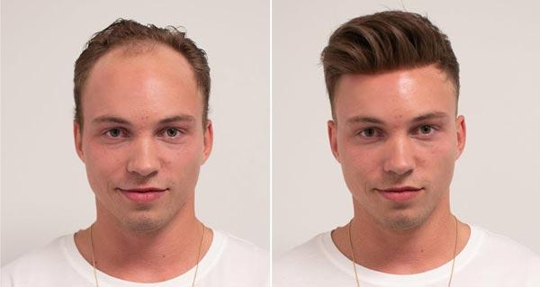 تفاوت کاشت مو