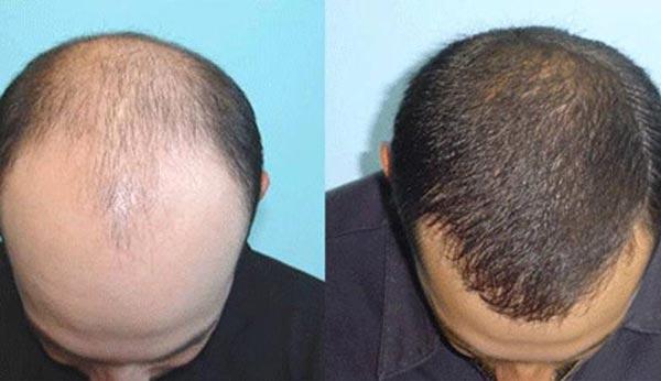 عوامل ریزش مو قبل کاشت مو