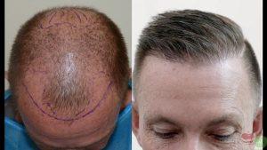 کاشت موی سر
