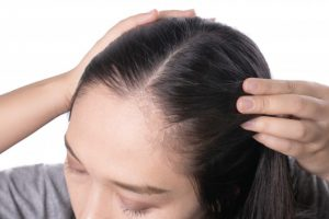 کلینیک کاشت مو در کرج