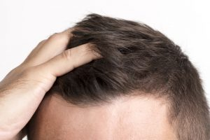 ویژگی های کلینیک کاشت مو در کرج