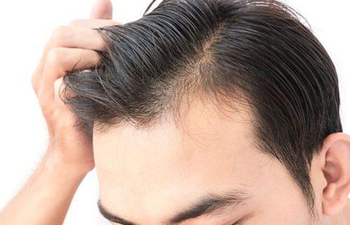 قیمت کاشت مو در کلینیک کاشت مو در کرج