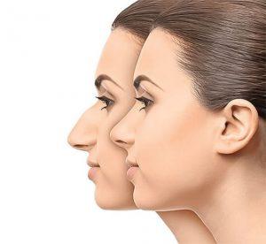 انواع جراحی بینی در کرج
