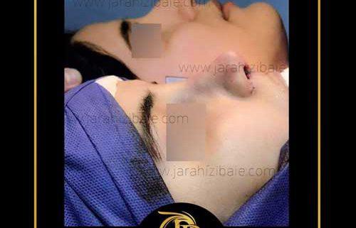 جراحی بینی در شمال
