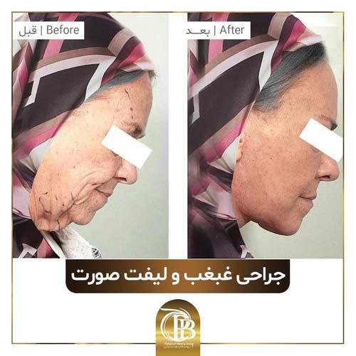 انواع جراحی زیبایی صورت